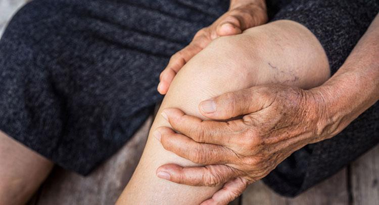 Douleur à la jambe - Phlébite