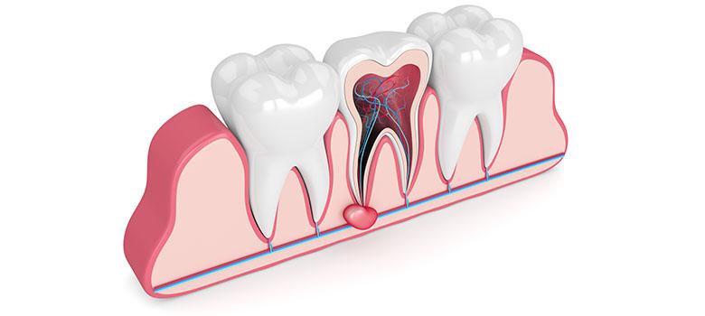 douleur dent