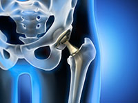 Illustration rayon x prothèse de hanche
