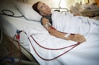myélome, dialyse rénale