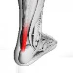rupture tendon d'Achille, opération, pied