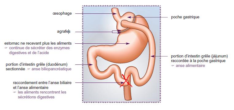Schéma 2 by pass gastrique